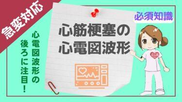 【心電図波形の後ろに注目】ナースの急変対応力up☆心筋梗塞の心電図波形をマスターしよう!